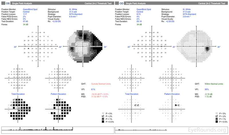 Figure 2: Humphrey Visual Fields (24-2). Left image: Normal visual field OD with good test reliability. Right image: Good test reliability with evidence of severe stage glaucoma with superior and inferior arcuate scotomas OS.