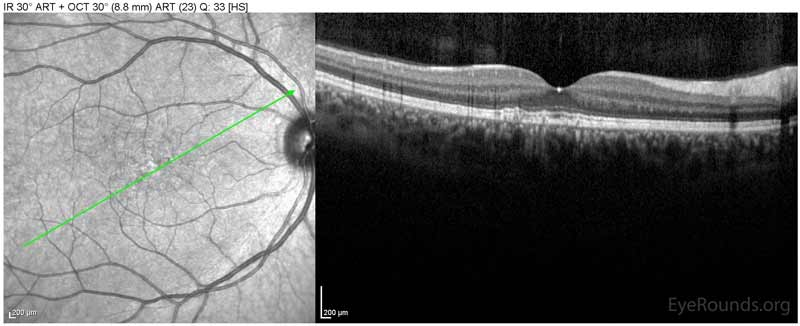 OCT-OD Optical coherence tomography of both eyes. In both eyes, there are small drusen above Bruch's membrane without sub- or intraretinal fluid.