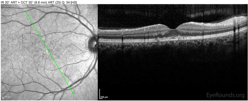 OCT OD Optical coherence tomography of both eyes. In both eyes, there are small drusen above Bruch's membrane without sub- or intraretinal fluid.