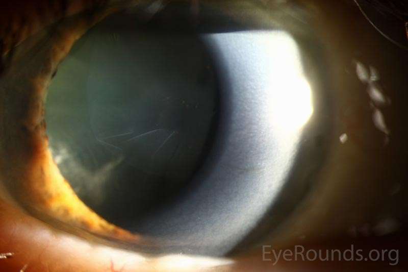 Slit lamp photograph OD demonstrating delamination of the anterior lens capsule with wrinkling of the free-floating flap in the anterior chamber.
