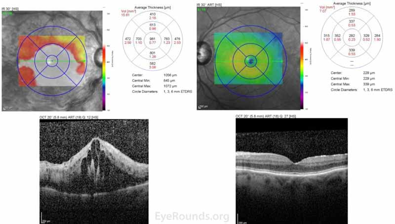 Optical coherence tomography (OCT), both eyes: OD - Severe cystoid macula edema (CME) with a central macula thickness of 981 microns. OS -  Normal foveal contour with mild epiretinal membrane.