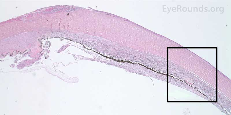 The upper hematoxylin and eosin (H&E) image (10X) shows the location (black box) of the lower image (40X).