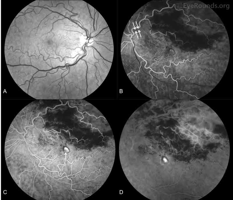 Fundus fluorescein angiography (FFA), both eyes: A. There was no evidence of vasculitis or leakage in the right eye. B-D. In the left eye, there was attenuation of the superotemporal veins (B), early staining of the central lesion (C, arrow) with late leakage (D), prominent superotemporal leakage (D), and no leakage inferotemporally. There was blockage superotemporally corresponding to the intraretinal hemorrhages. There was decreased perfusion and capillary remodeling of the far superotemporal peripheral vasculature (C and D).