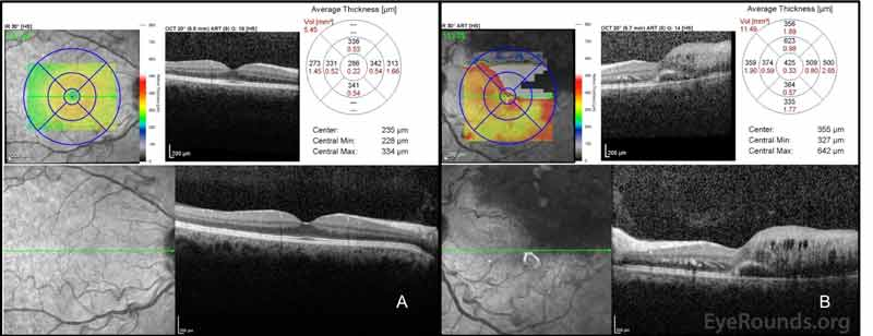 Optical coherence tomography (OCT): A. In the right eye, the central macular thickness (CMT) was 286 microns with a normal foveal contour. B. In the left eye (OS), the CMT was 425 microns with marked cystoid macular edema superiorly with subretinal fluid superiorly and temporally. Not depicted here is a pigment epithelial detachment inferior to the fovea with isodense material OS.