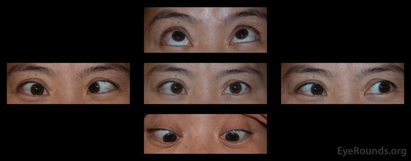 External photographs in primary position and several cardinal gazes. The patient had a large incomitant esotropia that increased on rightward gaze with an associated severe abduction deficit OD. There was a small adduction deficit OD. Supraduction, infraduction OD were full. There were no motility deficits OS. There was no proptosis, ptosis, lid retraction, or periorbital edema of either eye.