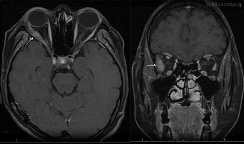 Magnetic resonance imaging (MRI) of the brain and orbits with contrast. Axial (left) and coronal (right) MR imaging showed significant non-uniform enlargement of the right lateral rectus muscle belly (white arrows) without enlargement of other extraocular muscle bellies or the lacrimal glands. There was no lesion along the course of the right sixth nerve. There was absence of sinus disease, retro-orbital mass, or enlargement of the lacrimal gland.