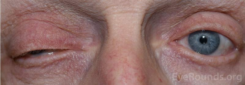 External photograph demonstrating right upper eyelid ptosis.