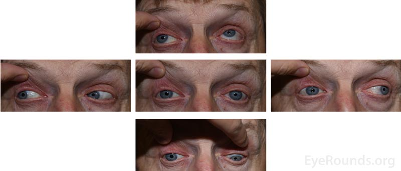 External 5-gaze photographs demonstrating the decreased motility of the right eye in all directions except for abduction.