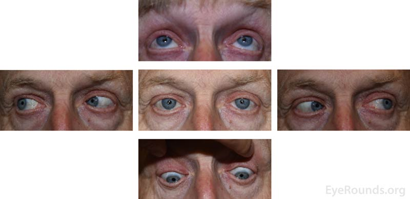 External 5-gaze photographs taken at the follow-up appointment four months after onset of symptoms demonstrating full extraocular motility and no ptosis bilaterally.