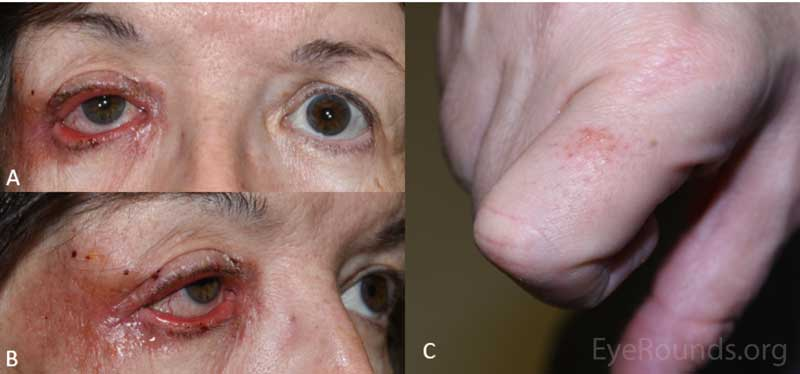 External photograph demonstrating rash of the right eyelid and periocular region (A and B) as well as the right proximal index finger (C)