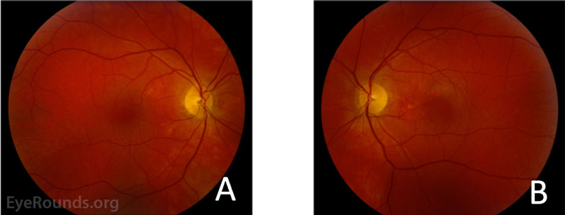 Fundus photography of the right (A) and left (B) eyes. The right eye demonstrated subtle hypopigmentary changes most apparent in the nasal macula, but no visible subretinal fluid, lipid, or heme. The left eye demonstrated subfoveal fluid with hyper- and hypopigmentary changes most prominent nasal and superior to the fovea.