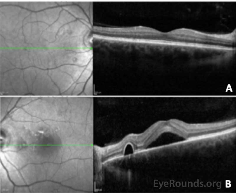 Optical coherence tomography of the right (A) and left (B) eye. In the right eye, the central macular thickness was 274 microns and there were several small serous pigment epithelial detachments nasal to the fovea without fluid. In the left eye, the central macular thickness 527 microns and there was subretinal fluid beneath the fovea with adjacent serous pigment epithelial detachments. The choroid was noted to be qualitatively thick in both eyes.