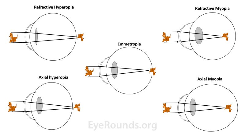 In cases of hyperopia (left side images) the refractive power of the eye is insufficient to focus the image onto the retina and/or the axial eye length is too short; thus the image is focused posterior to the retina. In cases of myopia (right side images) the refractive power of the eye is too strong or the axial eye length is too long; thus the image is focused anterior to the retina.
