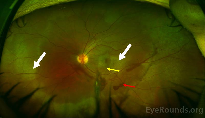 The media are hazy due to vitreous hemorrhage. There is pre-retinal hemorrhage along the arcades (red arrow). There is a choroidal rupture involving the fovea (yellow arrow) with surrounding macular and peripheral commotio (white arrows).