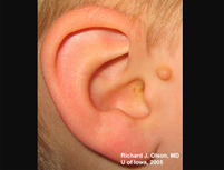 Preauricular skin tag, right ear. The ear itself has no deformity or microtia.