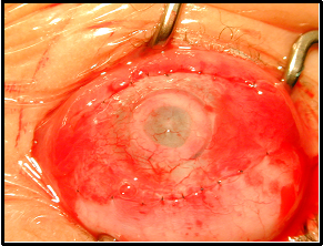 Appearance after Stage I procedure with conjunctival flap completed.