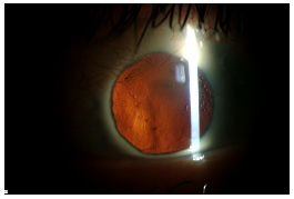 Slit lamp view of patient in video with red reflex showing resolution of RPM.