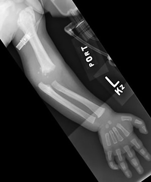 Left humerus fracture, shaken baby, non-accidental trauma case