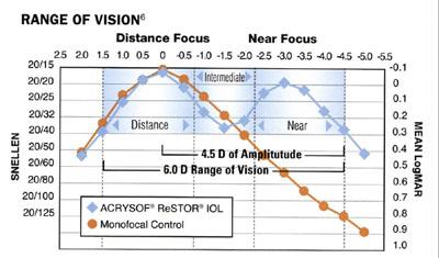 eyeroundsorg cataract surgery  restor intraocular lens  presbyopia