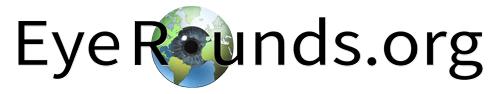 EyeRounds Logo, Text with Eyeball background