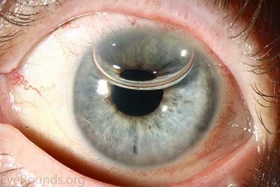 Anterior chamber gas bubbles