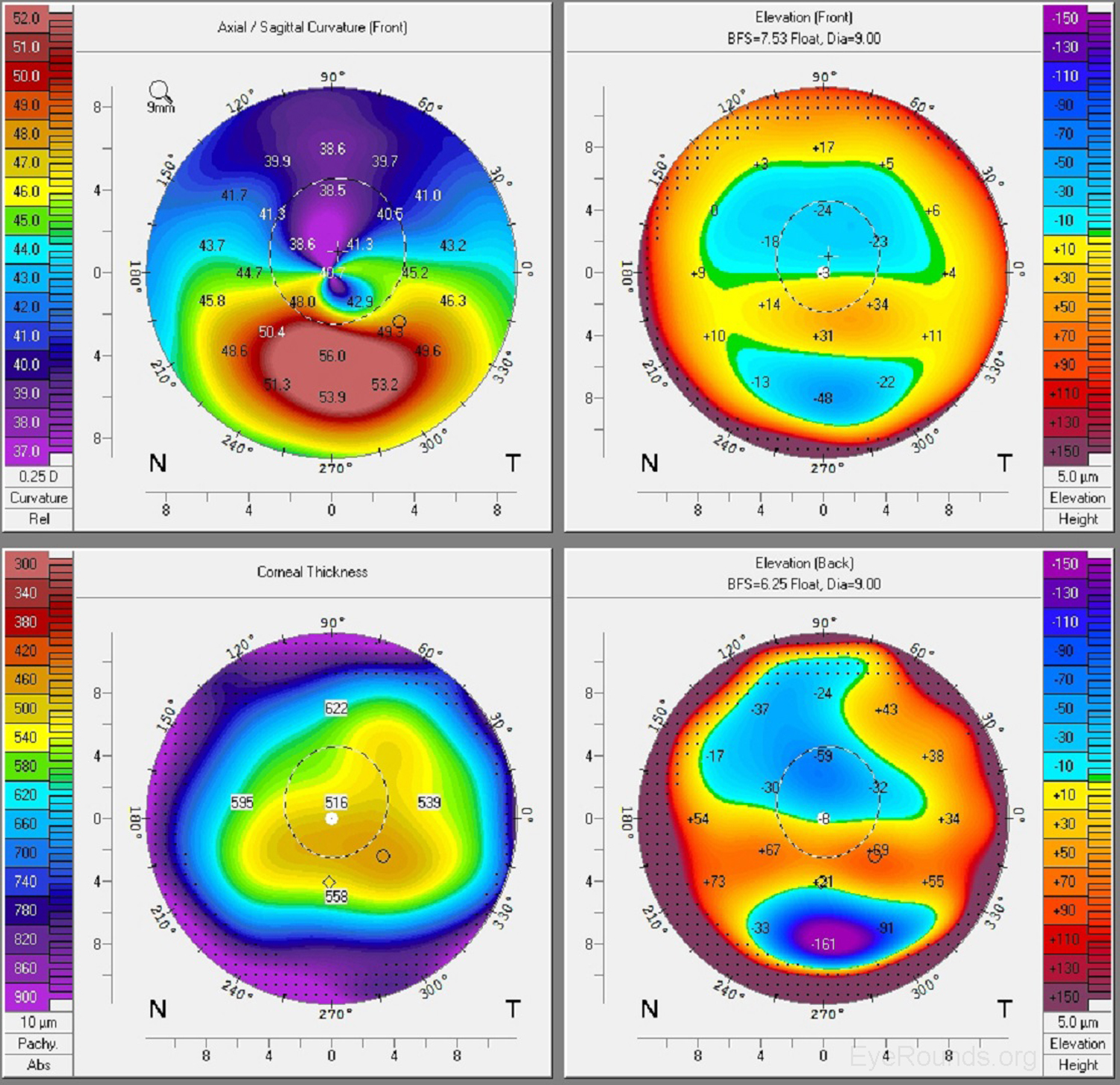 Corneal Imaging: An Introduction