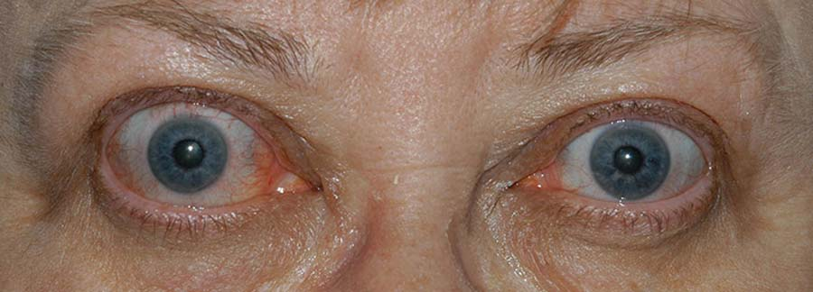 periorbital edema, eyelid retraction, scleral show, and conjunctival injection