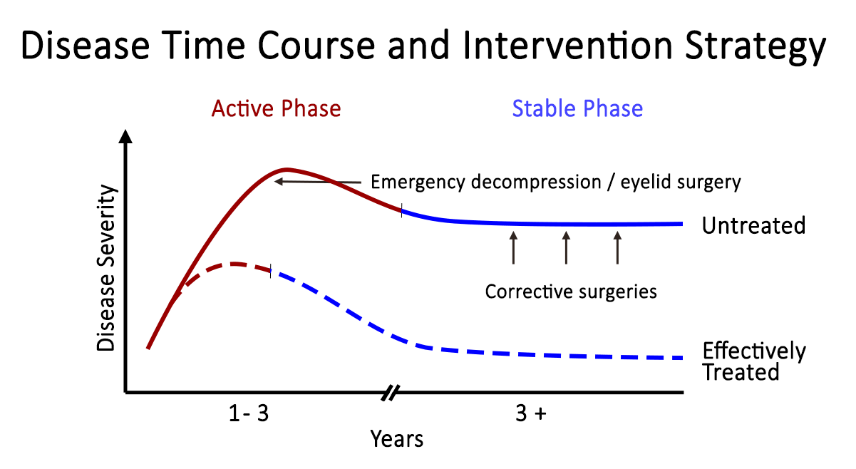Rundle's curve. As seen in the representation of TED activity over time in Rundle's curve, early initiation of therapy is crucial in diminishing the final severity of disease manifestations.