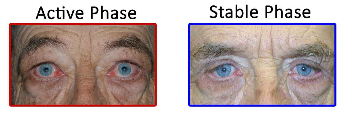 Active vs. Stable TED. Active TED is characterized by signs of inflammation (orbital muscle enlargement, conjunctival injection, swelling of periocular tissue, and chemosis). TED activity waxes and wanes, and usually transitions to stable TED within 1-3 years.
