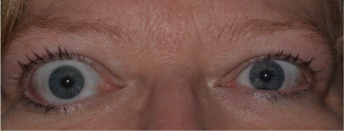 Eyelid retraction. Eyelid retraction is the most common presenting sign of TED, and is the result of many factors associated with TED. This image also shows Dalrymple's sign, characterized by the widening of the palpebral fissure. Note the superior and inferior scleral show.