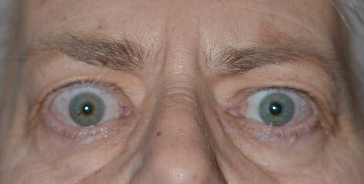 Temporal flare. Note the elevation of the temporal portion of the upper eyelid.