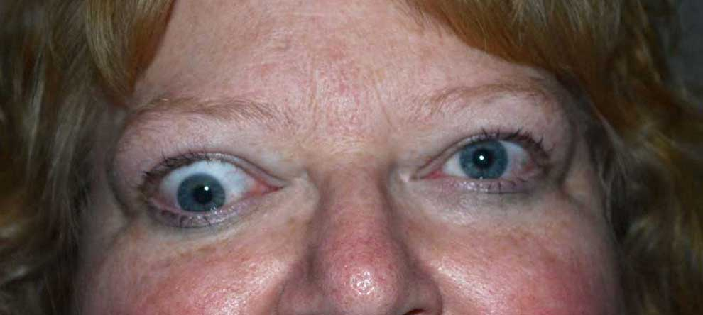 Hypotropia. Note the vertical misalignment of the eyes in primary gaze and the restrictive movement in upward gaze. This is due to an enlarged and restricted inferior rectus muscle.
