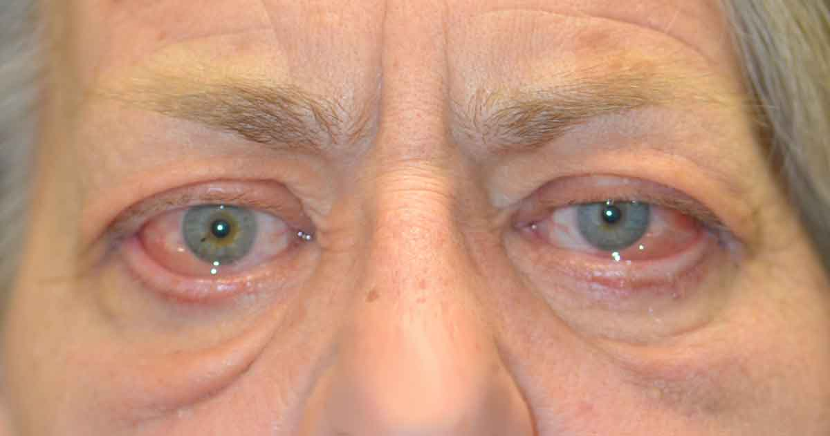 Chemosis. Note the swelling within the conjunctiva