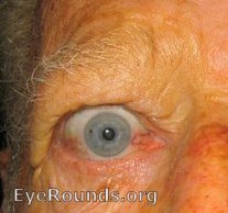 Conjunctival Injection. Note the dilation of the nasal and temporal conjunctival vessels. (larger image not available)